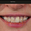 Digital Smile Design - Dental Software
